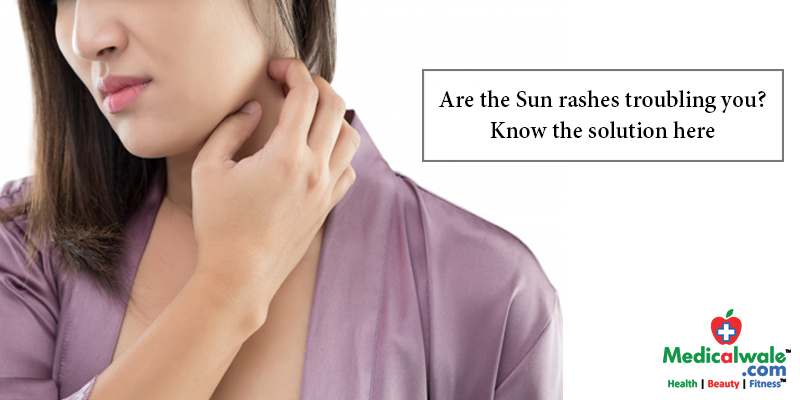 Are the Sun rashes troubling you? Know the solution here