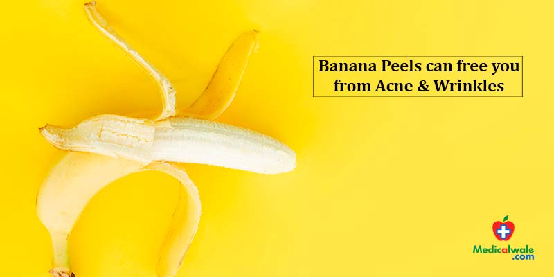 Banana Peels can free you from Acne & Wrinkles