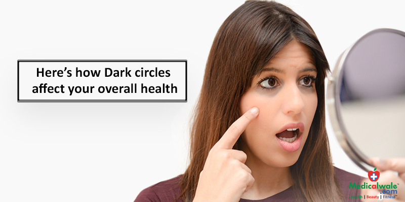 Heres how Dark circles affect your overall health