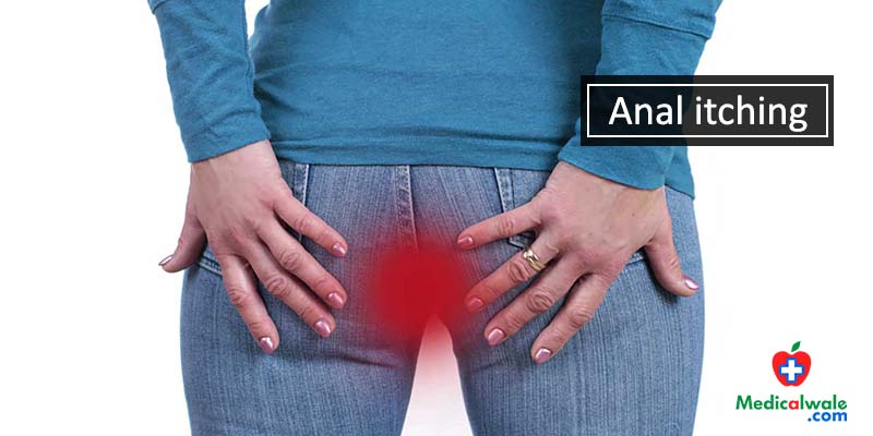 Anal Itching