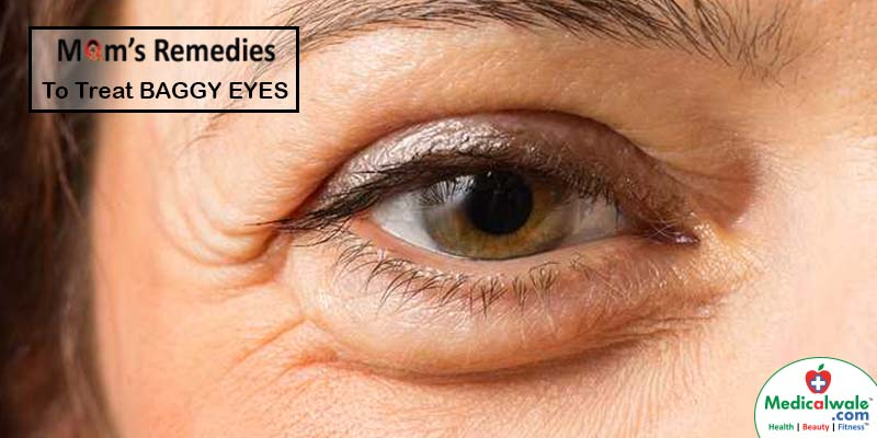 Moms Remedies to treat BAGGY EYES