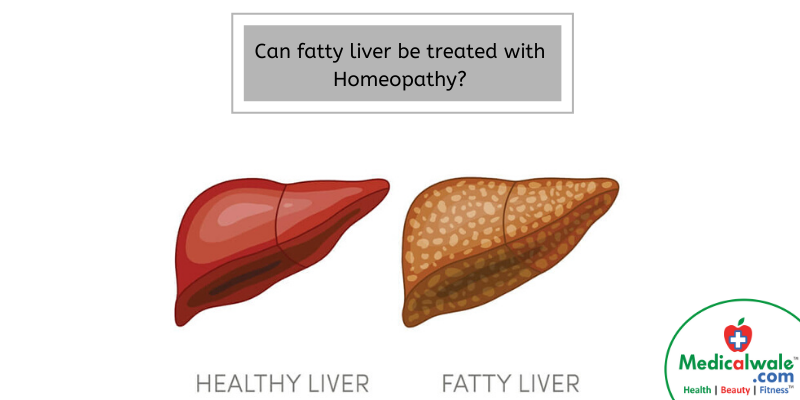 Can fatty liver be treated with Homeopathy?